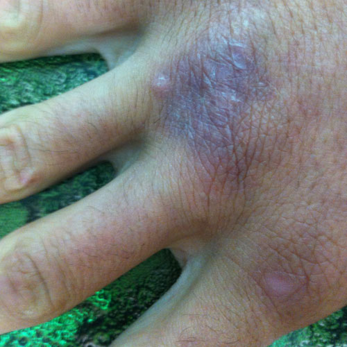 Andrew Ucles hand with Mycobacterium Marinum